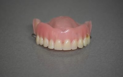 Different Types of Dentures