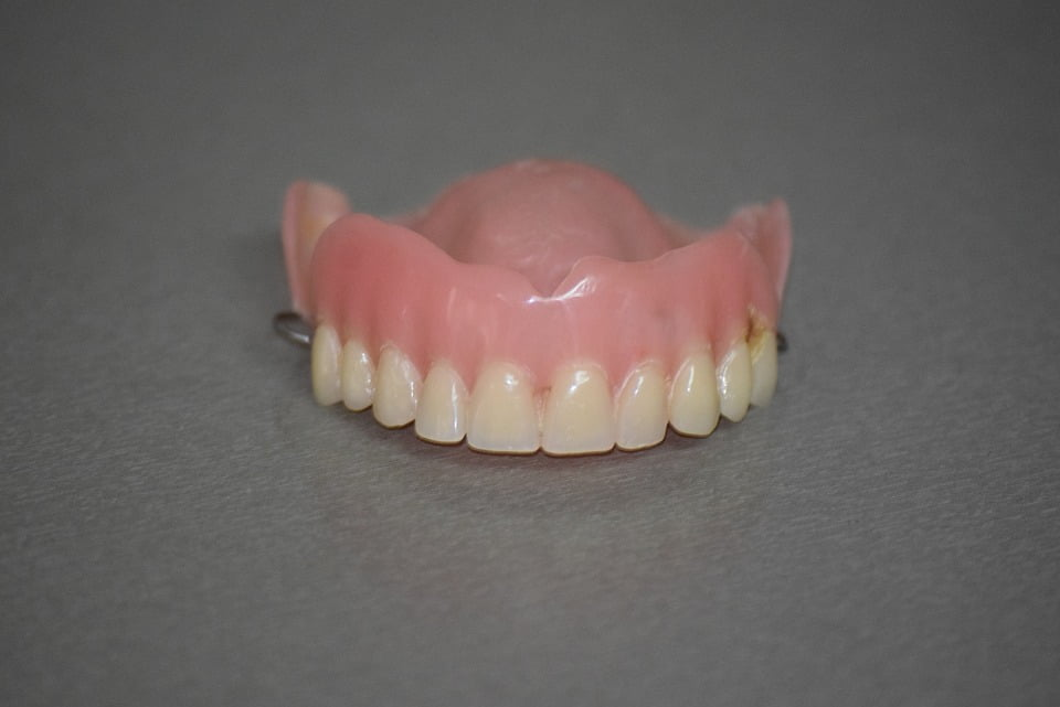 Denture Implants Mississauga
