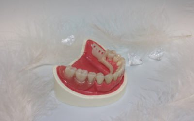 How To Relieve Irritation From Dentures