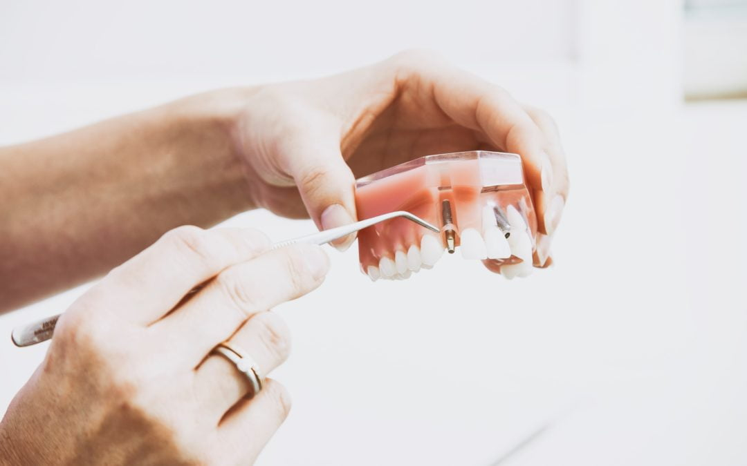 What Are Denture Relines and Why Are They Needed?