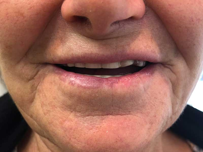 Accent Denture Services Implant at Mississauga