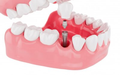 Fixed Denture Implants – What You Need To Know