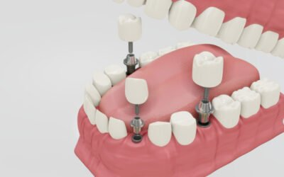 All-On-Four Or All-On-Six Fixed Denture Implants