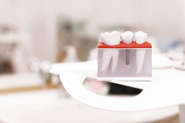 Mini Dental Implants and Why They're So Popular